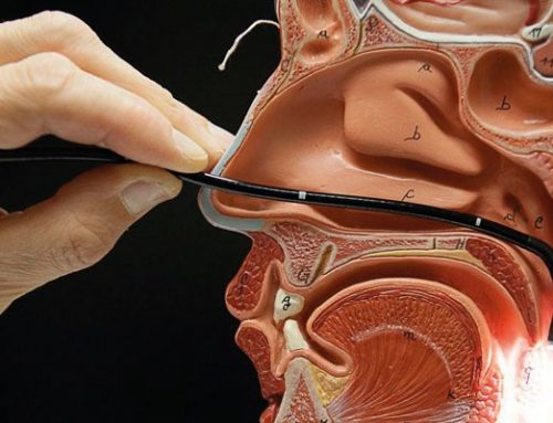 Nasofibroscopia